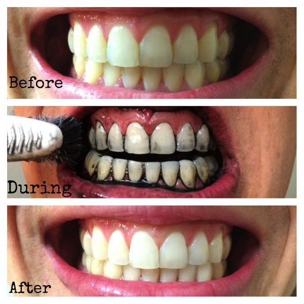 Whiten Your Teeth Naturally at Home