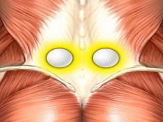Sub ce boli sunt durerile de spate